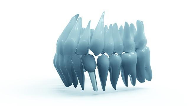 Individuelle Totalprothetik – wenn alle Zähne fehlen